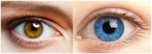 眼部过敏眼睛潮湿肿